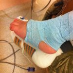 IV in foot